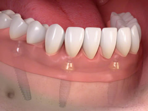 Dental Implants Notting Hill